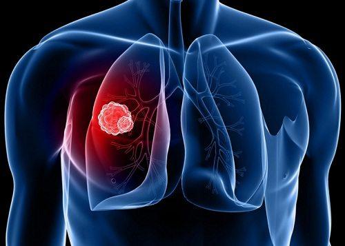 Chủ động miễn dịch và tấn công tế bào ung thư