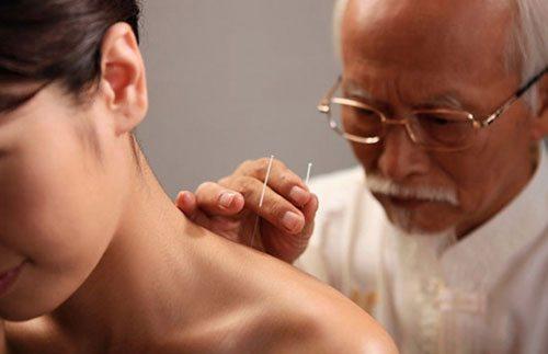Châm cứu trị liệu cho người bệnh bị tai biến