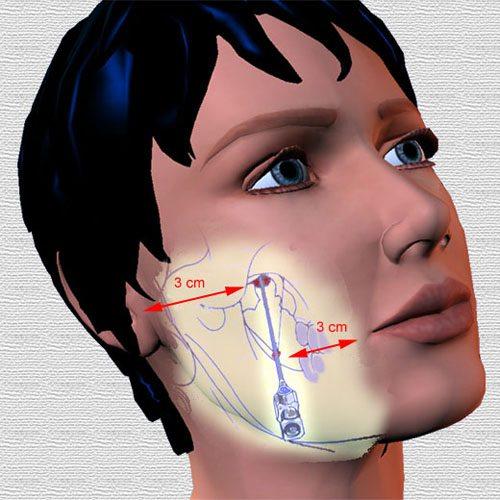 Viêm dây thần kinh vùng mặt biểu hiện chảy nước dãi khi ngủ mỗi đêm