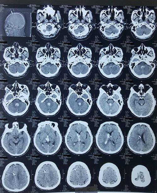 Phim chụp cắt lớp vi tính sọ não kiểm tra lại sau dẫn lưu não thất ra ngoài