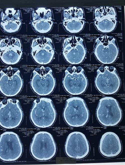 Phim chụp cắt lớp não khi bênh nhân mới vào viện