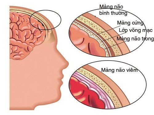 tong-quan-ve-benh-viem-mang-nao-2