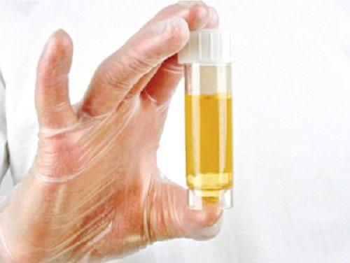 xet nghiệm nước tiểu