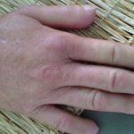 Xơ cứng bì là căn bệnh chưa có phương pháp điều trị khỏi
