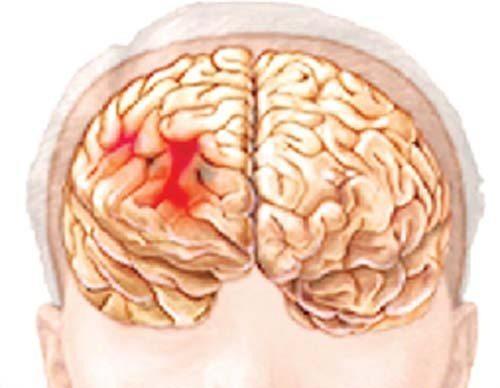Máu đọng trong não do bị xuất huyết
