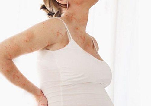 Mắc thủy đậu trong thời kì mang thai