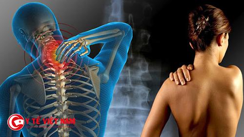 Hội chứng viêm đa cơ