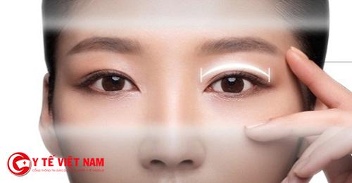 Phương pháp cắt mí mắt Hàn Quốc