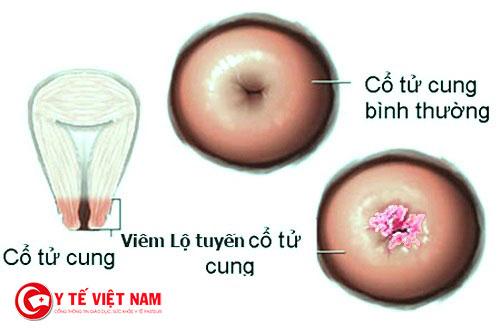 Bệnh viêm lộ tuyến cổ tử cung có thể gây ra vô sinh