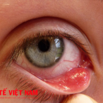 Bệnh đau mắt hột.