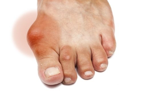 Điều trị bệnh Gout như thế nào cho hiệu quả