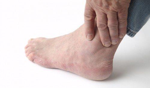 Bệnh Gout cần kiên trì điều trị lâu dài