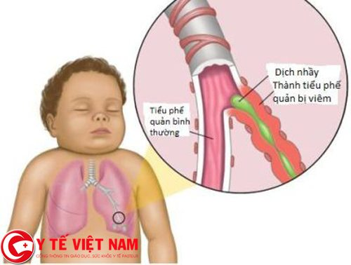 Bệnh hen suyễn ở trẻ nhỏ
