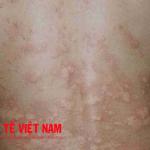 Nốt đỏ biểu hiện bệnh mề đay.
