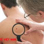 Dấu hiệu của bệnh ung thư da.