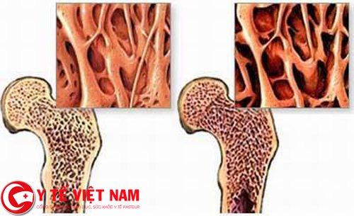 Ung thư xương sẽ vô cùng nguy hiểm nếu không được phát hiện kịp thời