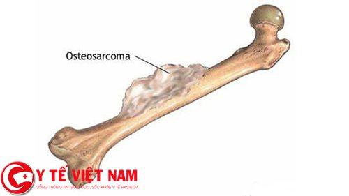 Bệnh ung thư xương ở trẻ em