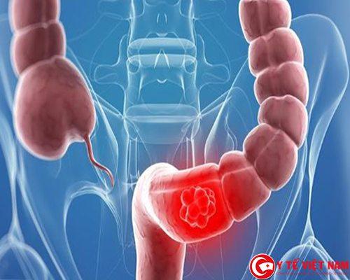 Bệnh viêm đại tràng nguyên nhân và triệu chứng