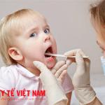 Bệnh viêm họng ở trẻ nhỏ.