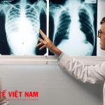 Bệnh viêm phổi là bệnh lấy nhiễm nguy hiểm.