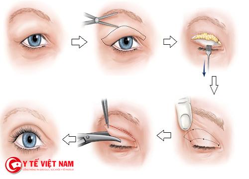 Các bước tiến hành cắt mí mắt chuẩn Hàn Quốc