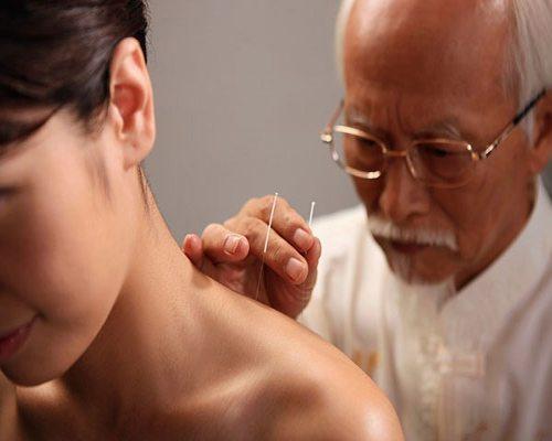 Châm cứu giúp người thoái hóa khớp giảm bớt các cơn đau