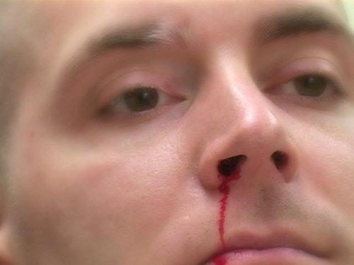 Chảy máu mũi là dấu hiệu của huyết áp cao khi ở giai đoạn đầu