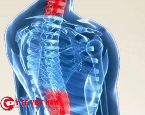 Gai đốt sống thường xuyên xuất hiện ở lưng và cổ
