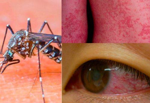 dau-hieu-nhan-biet-nhiem-virus-zika-ban-nen-biet