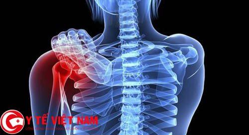 Bệnh ung thư xương có chữa dứt điểm được không?