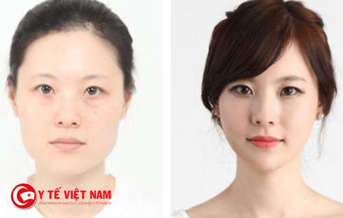 Hành ảnh trước và sau phẫu thuật