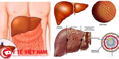 Người mắc bệnh ung thư gan