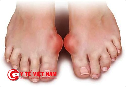 Bệnh nhân mắc bệnh Gout không nên sử dụng rau muống