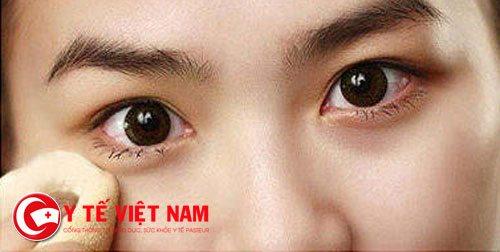 Bệnh lậu ở mắt rất nguy hiểm, bệnh có thể gây viêm, đau, sưng đỏ mắt