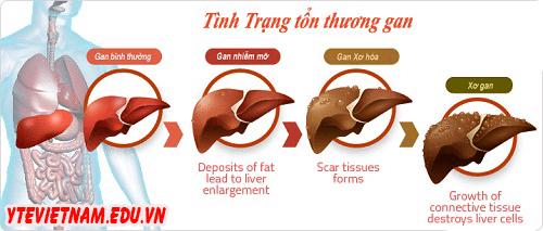 men_gan_tang_cao_co_the_phat_trien_thanh_xo_gan_va_ung_thu_gan