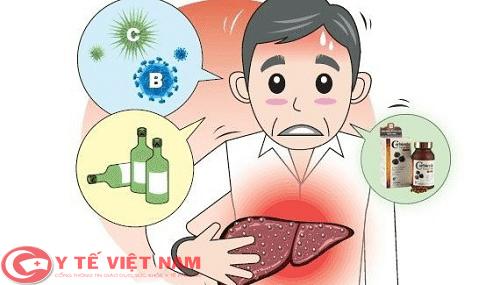 Giật mình với con số đáng sợ về bệnh gan ở Việt Nam