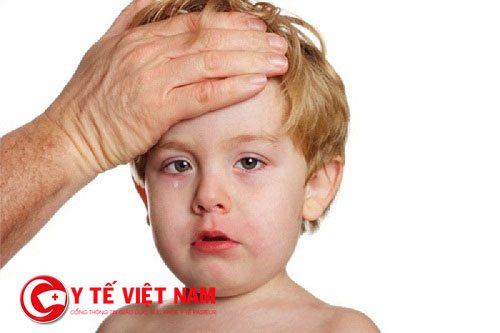Sốt cao từ 38-38,5 độ C hoặc nhức đầu là triệu chứng cho thấy trẻ bị quai bị