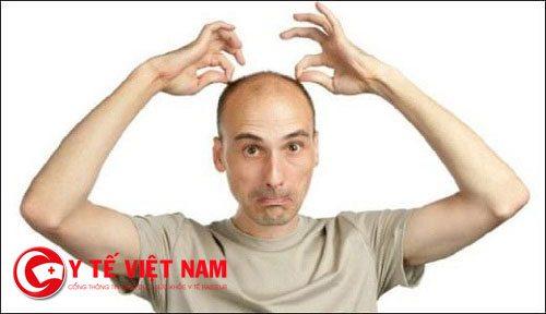 Rụng tóc nhiều ở nam giới khi số lượng tóc rụng mỗi ngày vượt quá khoảng 100 sợi/ngày