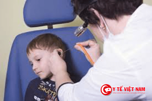 Điều trị viêm tai giữa cho trẻ cần có sự lưu ý của bác sĩ