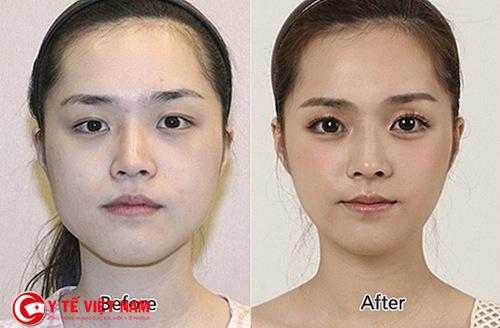 """Sau khi sử dụng phương pháp cắt mí mắt Hàn Quốc bạn sẽ """"trẻ mái với thời gian"""""""