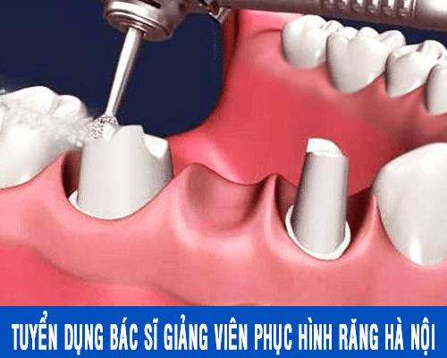 Tuyển dụng bác sĩ giảng viên phục hình răng