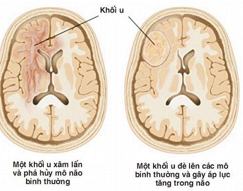 Bệnh u não khi được mô phỏng