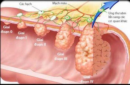 Vi khuẩn HP là nguyên nhân chính gấy ung thư dạ dày