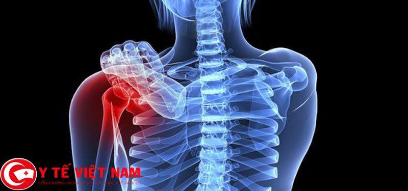 Những nguyên nhân dẫn đến bệnh loãng xương