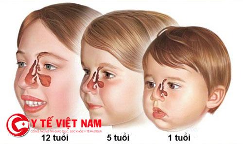 Bệnh viêm xoang ở trẻ sẽ khó chẩn đoán hơn ở người lớn