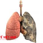 Ung thư phổi có mổ được không