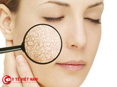 Tẩy tế bào chết là phương pháp căng da mặt hiệu quả