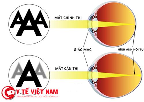 Hình ảnh mắt cận thị và mắt thường
