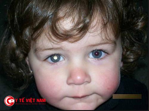 Bệnh đục thủy tinh thể thường ở những trẻ dưới 8 tuổi