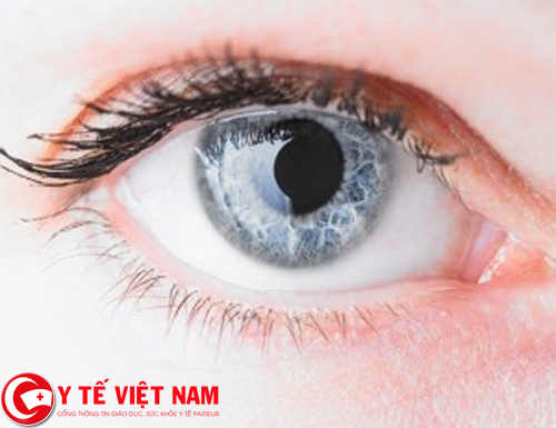 Bệnh khô mắt là gì